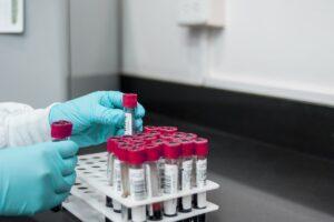laboratorija testovi